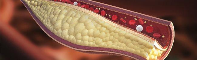 que es hipercolesterolemia