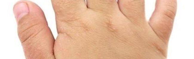 que es la dermatitis atópica y como se puede solucionar