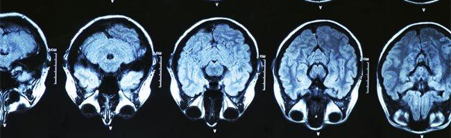 que es el glioma cerebral