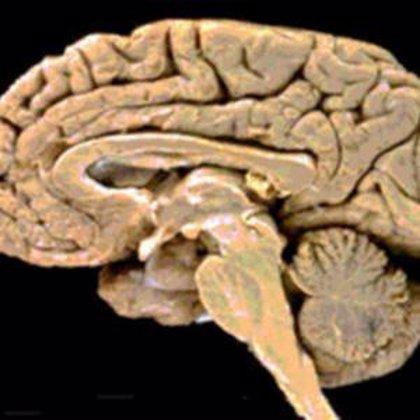 Descubren una proteína que interviene en las enfermedades neurodegenerativas