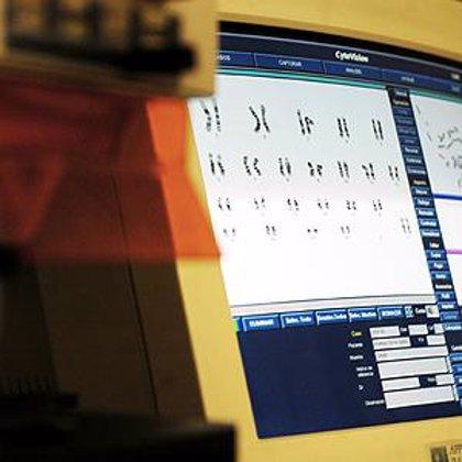 Investigadores franceses descifran los mecanismos que controlan la expresión genética