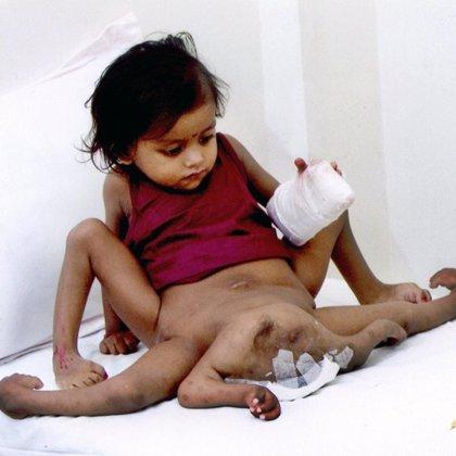 La niña india intervenida para extirpar sus miembros adicionales recibe el alta del hospital