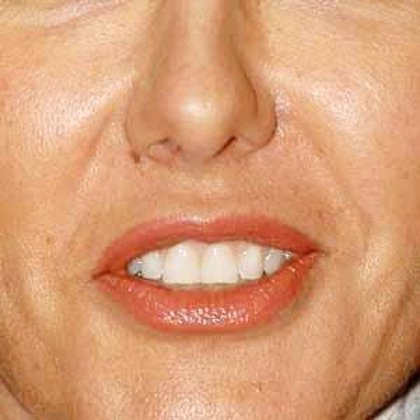 La dentadura es el problema estético que más preocupa a los españoles