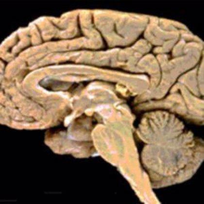 Nuestro cerebro se adelanta a las decisiones que tomamos