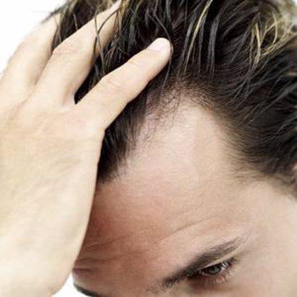 Uno de cada tres hombres empieza a perder pelo a los 30 años de edad