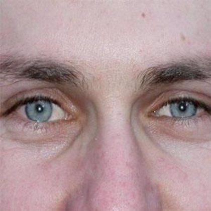 Las lentes de contacto contienen bacterias que pueden provocar ceguera