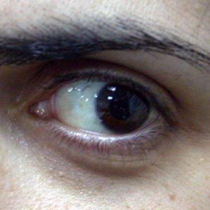 Especialistas mexicanas logran corregir la vista cansada sin necesidad de intervención quirúrgica