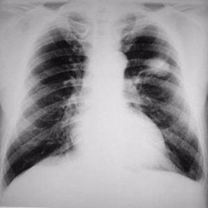 La EPOC triplica las posibilidades de padecer cáncer de pulmón