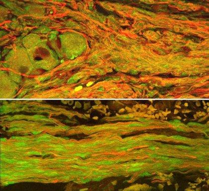 Nervios de diseño propician la regeneración de tejido dañado