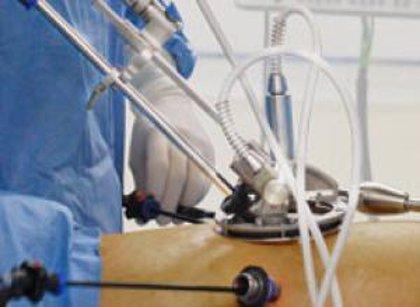 Primera extracción de tumor de páncreas con laparoscopia robotizada
