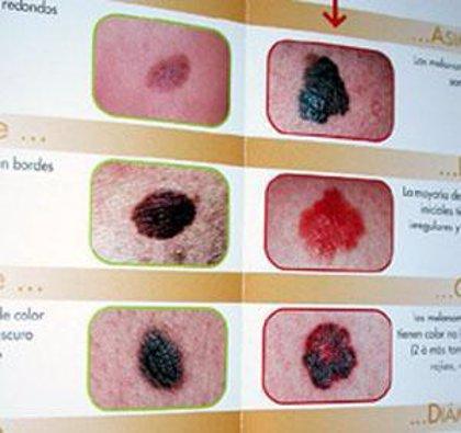 Un gen puede suprimir el crecimiento tumoral en el melanoma