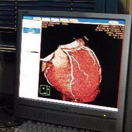 Un apósito de colágeno para mantener vivas las células madre en lesiones coronarias