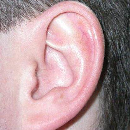 """Secarse bien los oídos después de cada """"chapuzón"""", clave para evitar una otitis este verano, según una experta"""
