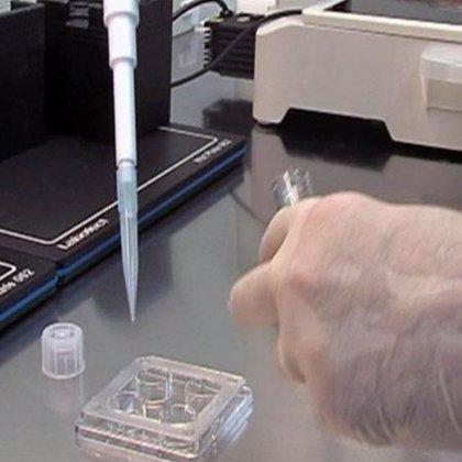 Descubren un mecanismo genético común en el cáncer de pulmón y esófago