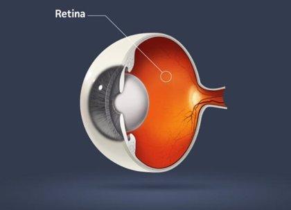 Una prótesis de retina permite recuperar visión a ciegos totales