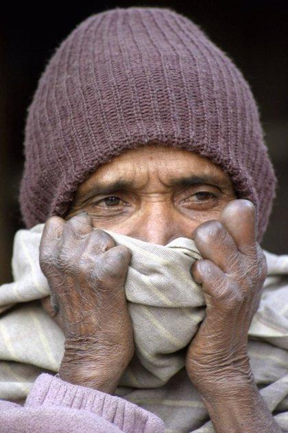 Identifican 7 genes que aumentan la susceptibilidad a la lepra