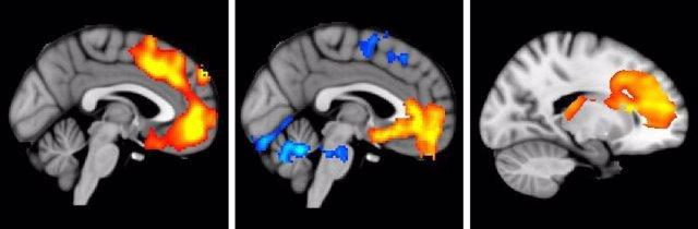 Anomalias cerebro