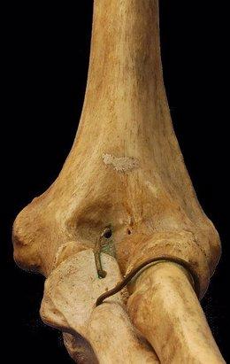 Hueso, Osteoporosis
