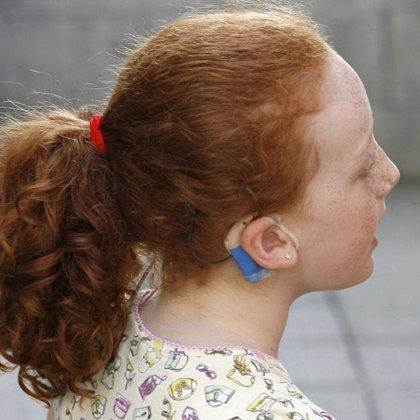 Un total de 962 personas en La Rioja padecían en 2009 discapacidad auditiva