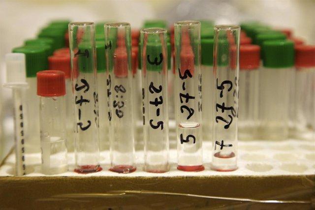 Probetas de laboratorio