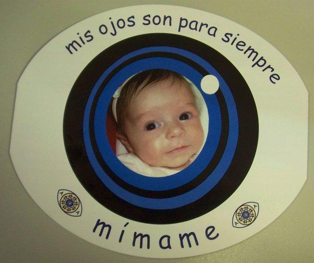 Campaña Sociedad Española de Aniridia