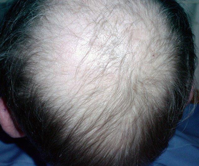 calvicie, alopecia