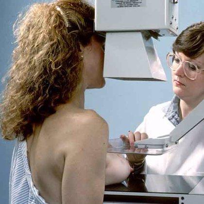 Una de cada ocho mujeres gallegas desarrollará un tumor maligno de mama, según datos de la Aecc