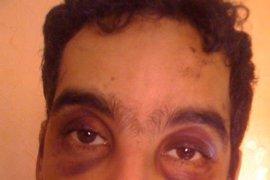 """Denuncian que un ciudadano español fue """"salvajemente torturado"""""""