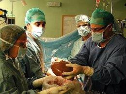 En 2010 se incrementó el número de trasplantes