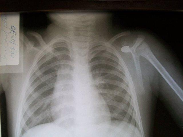 Radiografía, rayos X, radiología, técnicas de imagen