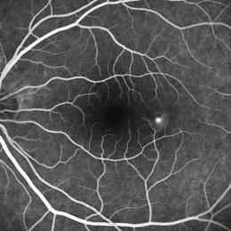 enfermedad retina