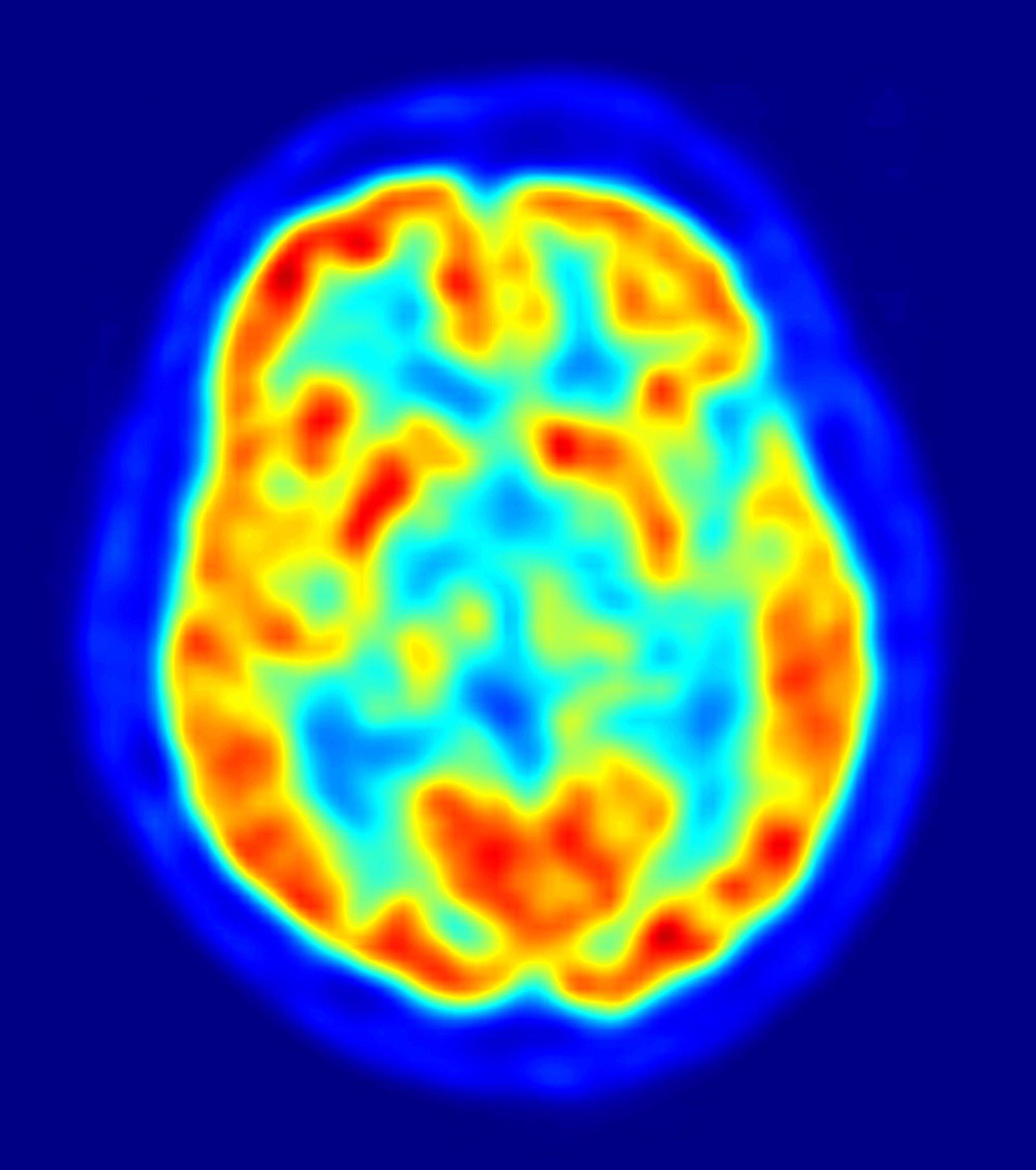 Circuito Neuronal : Descubierto un circuito cerebral que controla la ansiedad