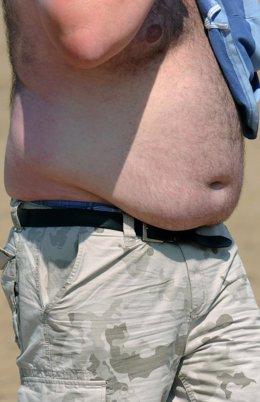 Hombre obeso.