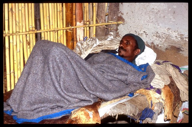 Paciente Con Malaria En Etiopia