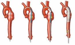 Ejemplo De Cirugía Endovascular