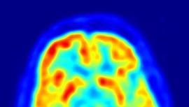 Las neuronas cultivadas a partir de células de la piel pueden dar pistas sobre el autismo
