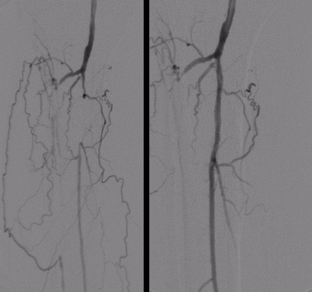 Cirugia Endovascular