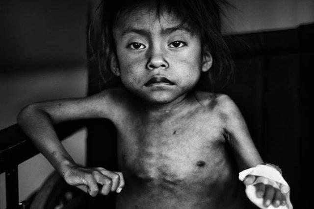 Segundo Premio Del Concurso De Fotografía De Unicef