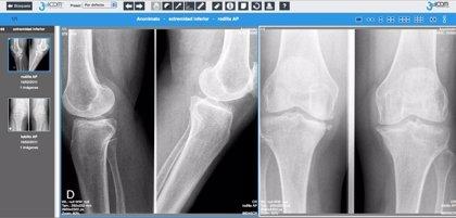 Diseñan un visor web de imágenes radiológicas que mejorará la telerradiología hospitalaria