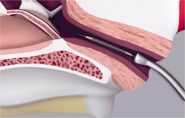 Se Puede Solucionar La Otitis Crónica
