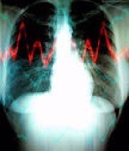 Madrid.- El 12 de Octubre atiende un 34% de los afectados por hipertensión pulmonar del país