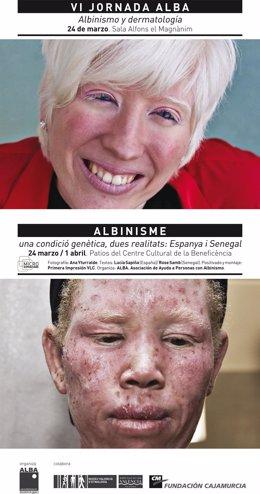 El Museu Valencià D'etnología Acoge Una Exposición Sobre Albinismo.