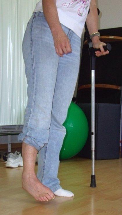 El 75 por ciento de los pacientes que sufre un ictus arrastra problemas de movilidad