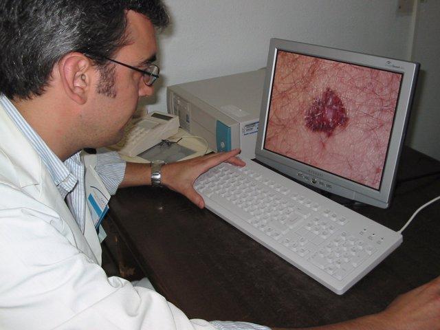 Un Médico Observa Un Melanoma Gracias A La Teledermatología