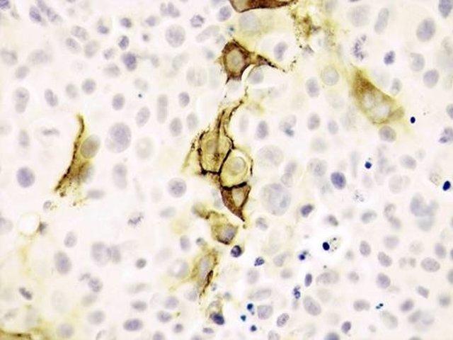 Las Células De Melanoma Con Los Vectores Virales -Telomerasa