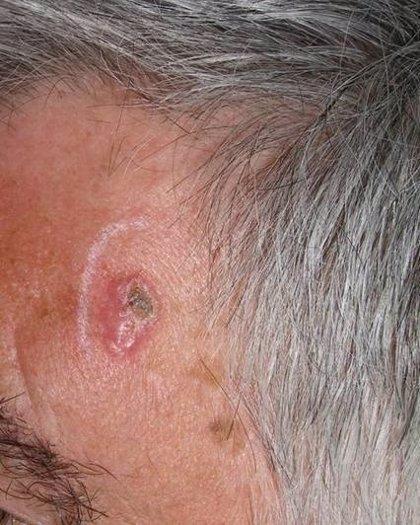 El 98% de los cánceres de piel se pueden curar si se diagnostican pronto