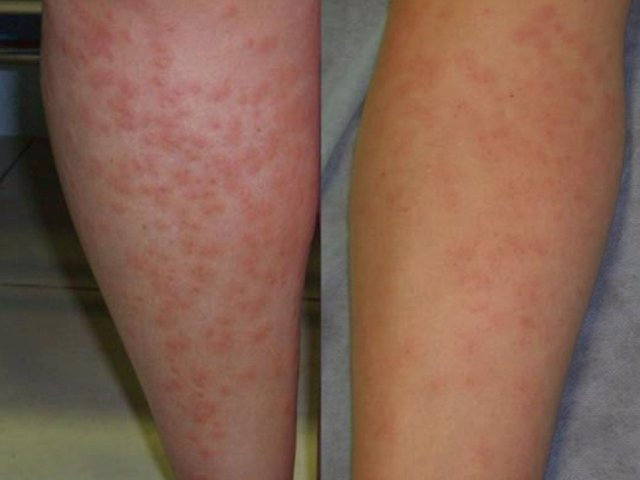 La Ansiedad Puede Agravar La Dermatitis At 243 Pica
