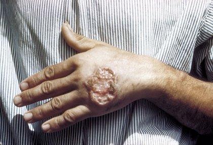 Descubren cómo evitar que el parásito de la lishmaniasis se haga cada vez más resistente al tratamiento