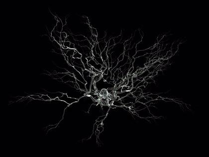 Identifican una proteína implicada en la progresión de la esclerosis múltiple