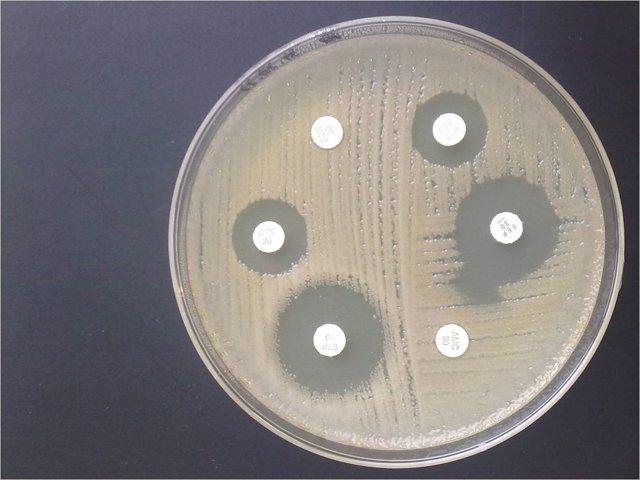 Antibiograma E coli resistencia a AMC